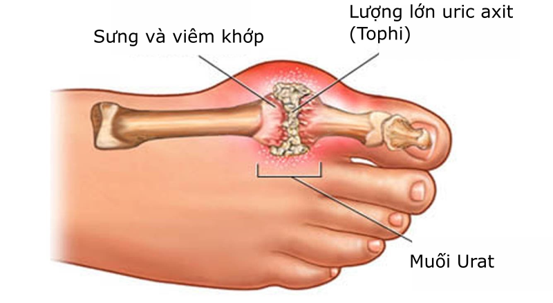 Chữa bệnh gout bằng việc sử dụng nước ion kiềm