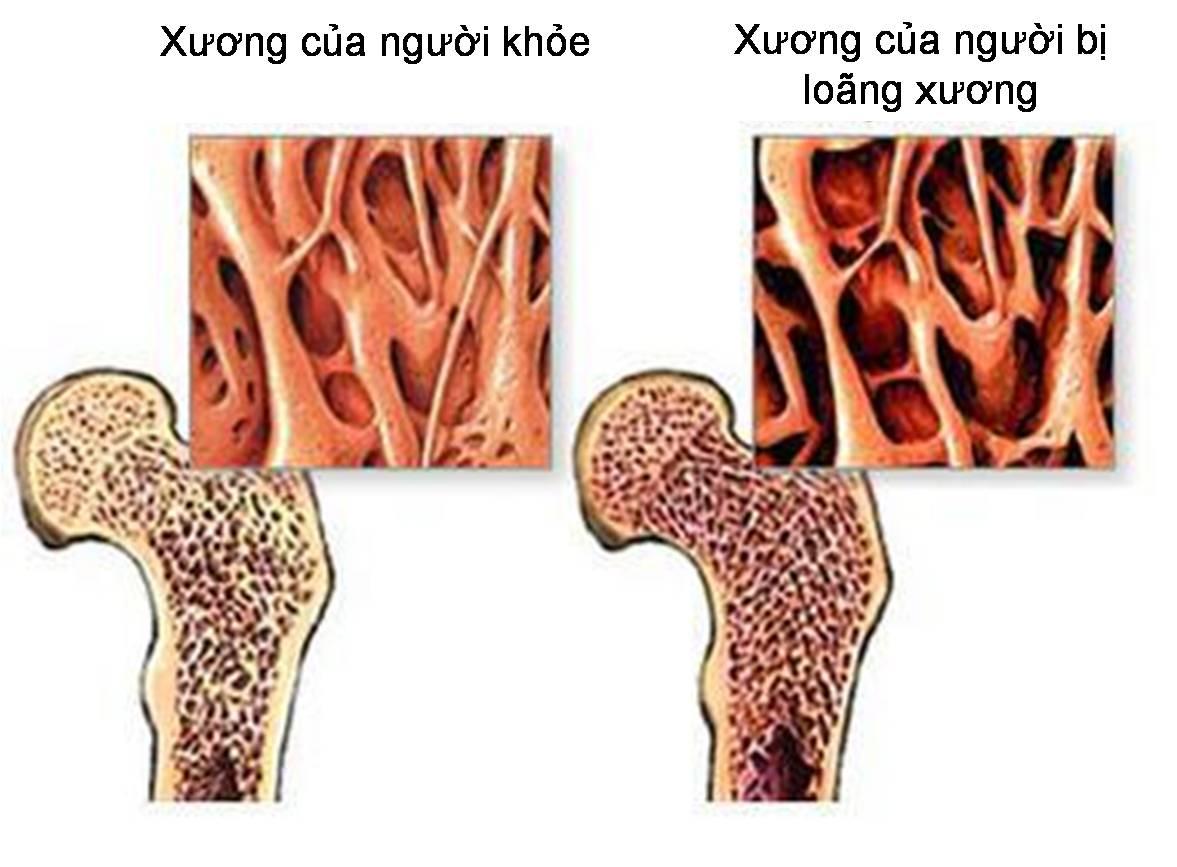 Nước ion kiềm trị bệnh loãng xương